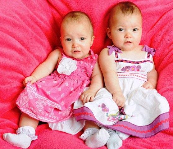 Spasila svoju sestru blizanku u maternici i spriječila pobačaj
